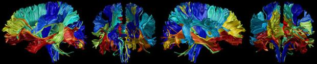 neuroimaging-tracking-brain-changes