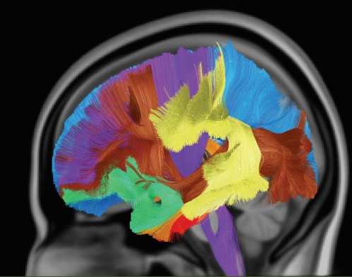 Anxietty morphology.jpg